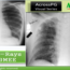 Chest X ray visuals for PGMEEs